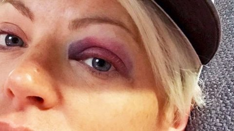Dixie Chicks' Natalie Maines Shares Painful Photos Of Black Eye | Country Music Videos